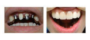 Виды протезирования передних зубов