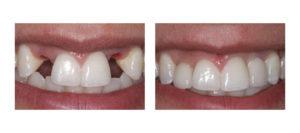 Протезирование передних зубов До и После