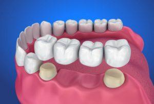 Схема моста для зубов