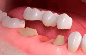 Мост на задние зубы